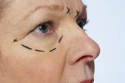 La blefaroplastia es la tercera cirugía estética más demandada en el mundo