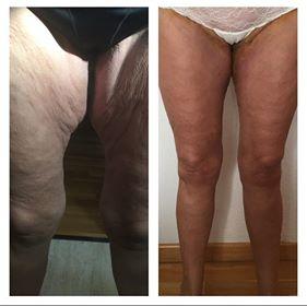 Antes y después de un liftin de muslos