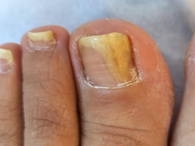 Onicomicosis: infección de la uña por hongos.