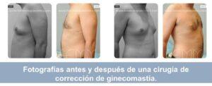 Fotos antes y después de una cirugía de ginecomastia realizada en FEMM (Madrid).