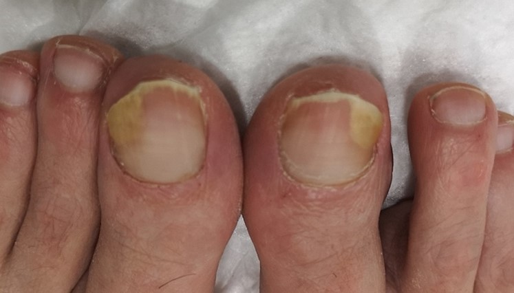 Onicosis bilateral