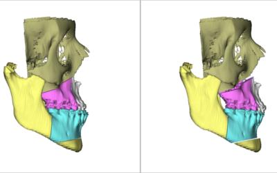 Tecnología 3D en cirugía ortognática