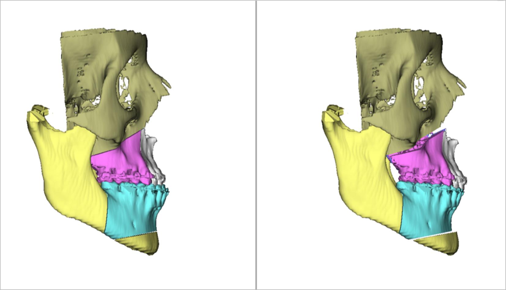 Planificación en 3D de una cirugía ortognática realizada por el dr. Eduardo Sánchez-Jáuregui