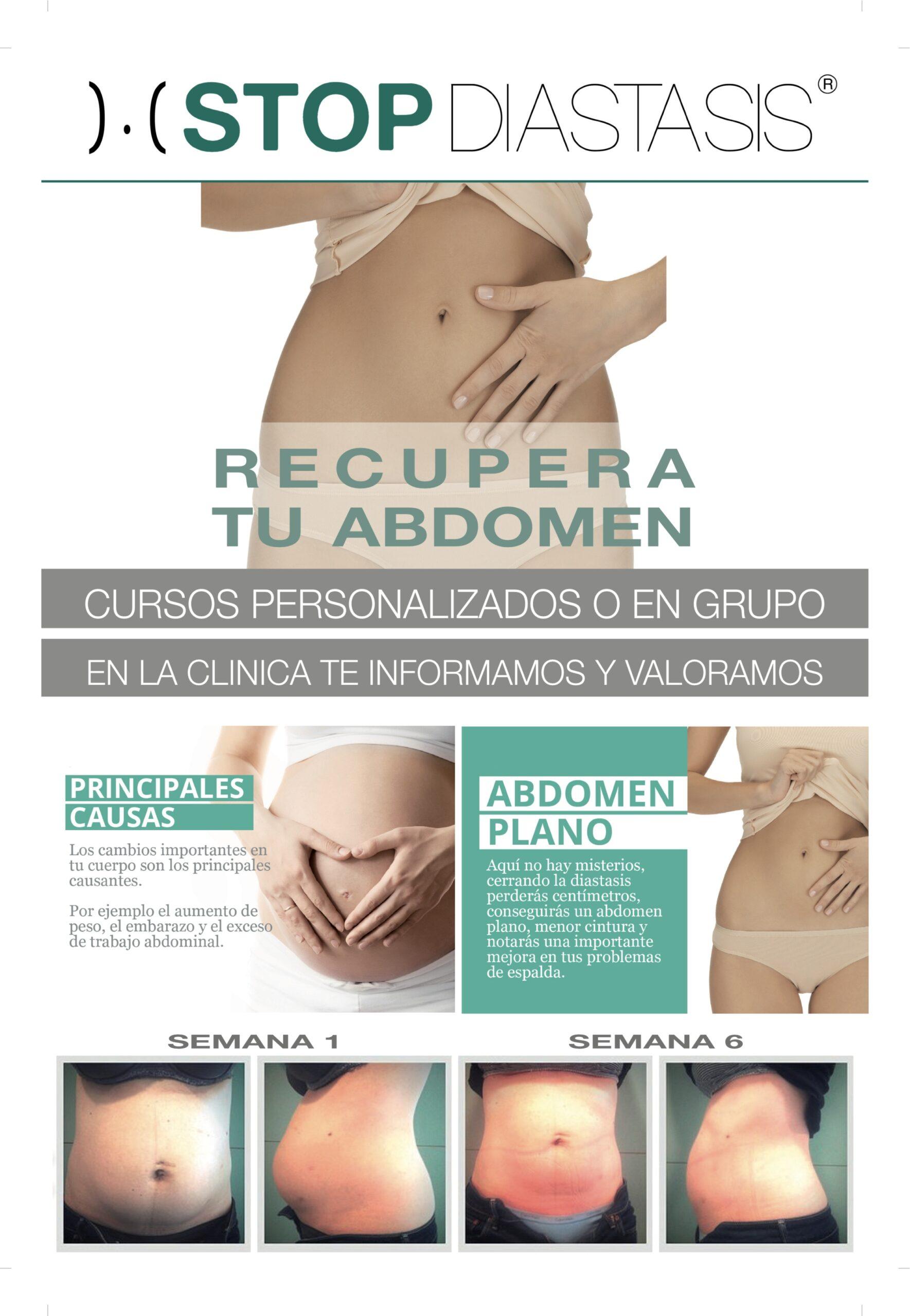Como recuperar tu abdomen con ejercicios específicos.