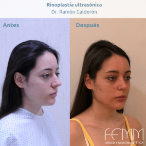 Fotografías antes y después de una rinoplastia ultrasónica realizada por el dr. Ramón Calderón