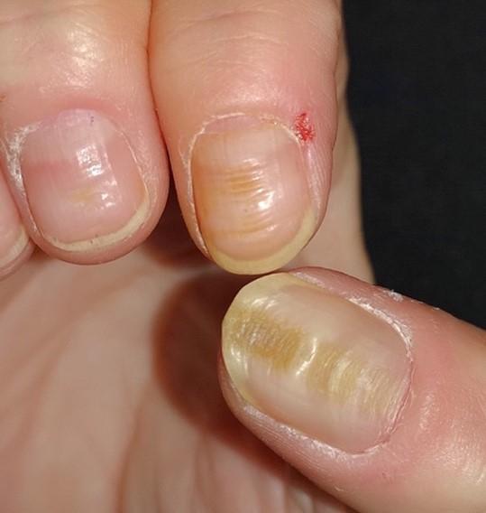 Surcos horizontales en uñas