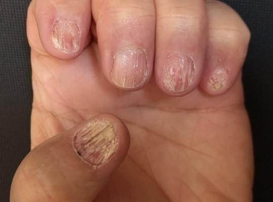 surcos verticales en las uñas por liquen plano