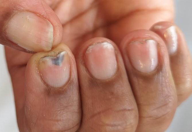 Uñas frágiles de tipo uñas desgastadas por fricción