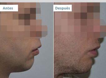 Con qué cirugía puedo conseguir la barbilla de Brad Pitt