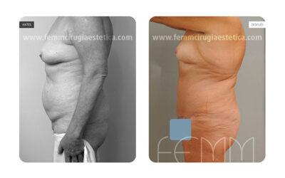 Abdominoplastia  fotos de antes y despues · Caso 9
