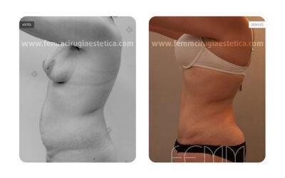 Abdominoplastia mediante plicatura de músculos rectos · Caso 2