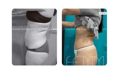 Abdominoplastia por embarazo y cambio de peso · Caso 7