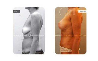 Abdominoplastia y elevación de pecho · Caso 10
