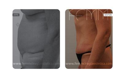 Umbilicoplastia y aumento de pecho con prótesis 370cc · Caso 1