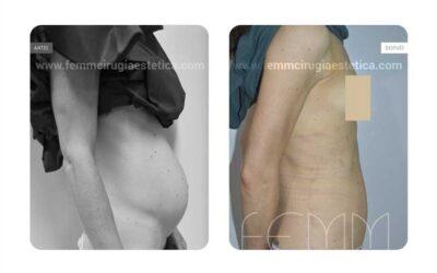 Abdominoplastia · Caso 16