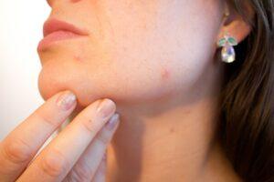 El acné, la rosácea, la psoriasis, el liquen plano, la dermatitits atópica y la dermatitis seborreica son típicas patologías dermatológicas.