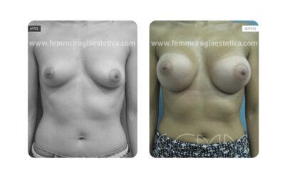 Asimetría mamaria y aumento de pecho con prótesis 380 cc · Caso 3