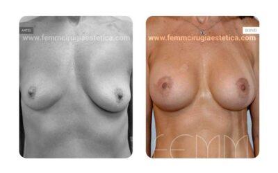 Asimetría mamaria y aumento de pecho con prótesis 430 cc · Caso 2