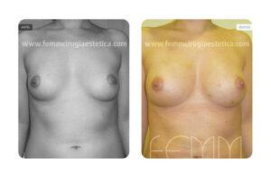 foto antes y después aumento de pecho con grasa