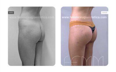 Aumento de glúteo con implantes anatómicos de 305cc · Caso 14