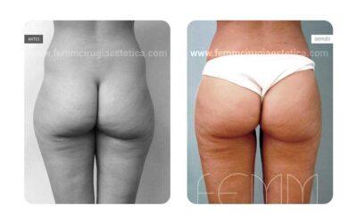 Aumento de glúteos con grasa propia · Caso 6