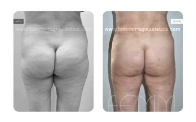 Aumento de glúteos con grasa propia · Caso 8