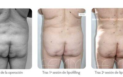 Aumento de glúteos con grasa propia · Caso 9