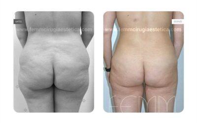 Aumento de glúteos con grasa propia · Caso 10
