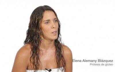 AUMENTO DE GLÚTEOS: Gluteoplastia con prótesis