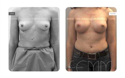Aumento de pecho con prótesis anatómicas de 320cc · Caso 57