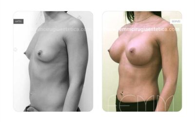 Aumento de pecho con implantes anatómicos de 445cc  · Caso 58