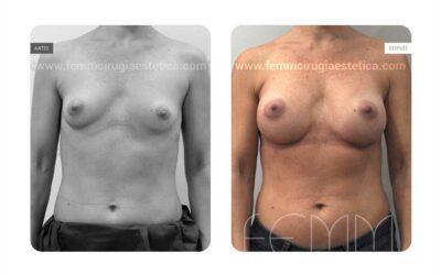 Aumento de pecho con prótesis anatómicas de 350cc · Caso 61