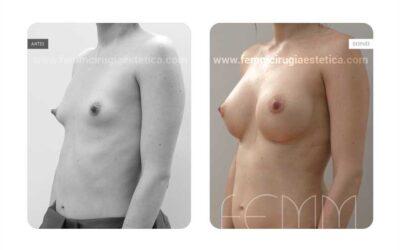Reducción de pezón y aumento de pecho con prótesis · Caso 6