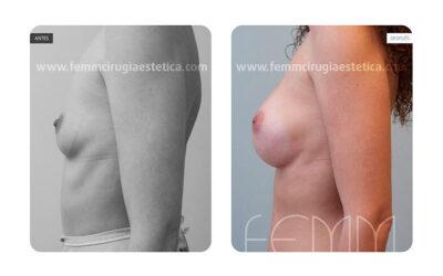 Aumento de pecho con prótesis anatómicas de 450cc · Caso 22