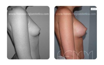 Aumento de pecho con prótesis anatómicas de 290cc · Caso 24