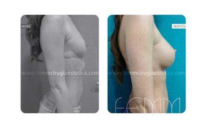 Aumento de pecho con prótesis anatómicas de 305cc · Caso 4