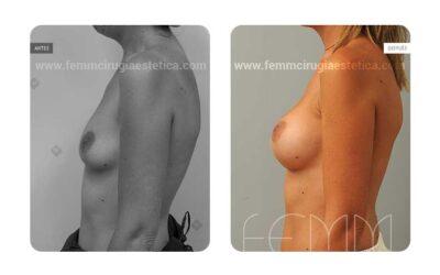 Aumento de pecho con prótesis anatómicas de 280cc · Caso 29