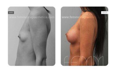 Aumento de pecho con prótesis anatómicas de 320cc · Caso 31