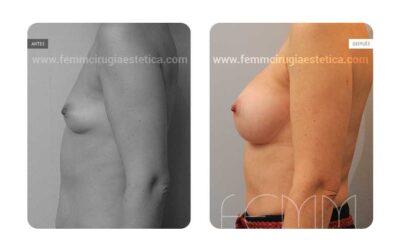 Aumento de pecho con prótesis anatómicas de 360cc · Caso 5
