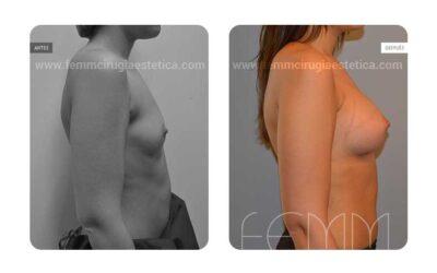 Aumento de pecho con prótesis anatómicas de 290cc · Caso 35