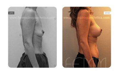 Aumento de pecho con prótesis anatómicas de 370cc · Caso 6