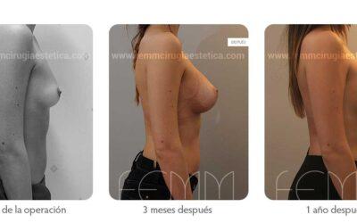 Aumento de pecho con prótesis anatómicas de 320cc · Caso 40