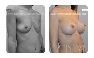 Asimetría mamaria y aumento de pecho con prótesis 320 cc · Caso 5
