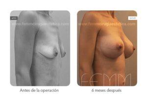 Foto oblicua derecha antes y después de un aumento de pecho con prótesis