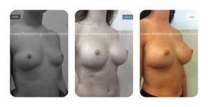 Foto oblicua derecha antes y después de aumento de pecho con prótesis