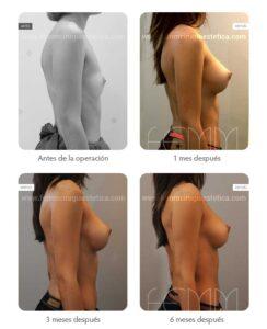 Evolución en seis meses de un aumento de senos con implantes