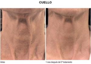 biorremodelacion_cuello_caso-clinico