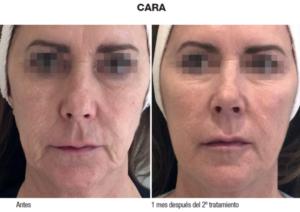 biorremodelacion_facial_caso-clinico