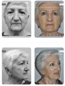 Fotos antes y después de una cirugía mixta de blefaroplastia superior y un lipofilling facial en el párpado inferior.