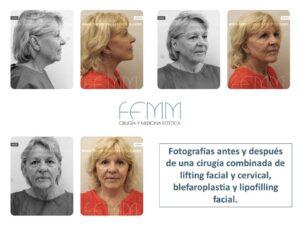 Fotografías antes y después de una cirugía combinada de lifting facial y cervical, blefaroplastia y lipofilling facial.